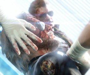 Доктор Серджио «Я-Пересажу-Голову» Канаверо подаст в суд на Кодзиму
